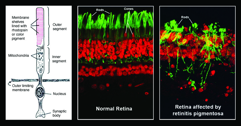 Left: Normal structure of rod cells of the retina. Center and right: Fluorescence-labeled cross sections of normal retina and those with advanced retinitis pigmentosa.. Courtesy of the American Foundation for the Blind